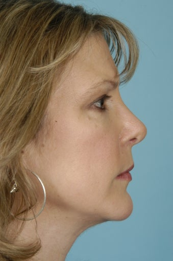 46 yo Female Rhinoplasty, Genioplasty after 1436649