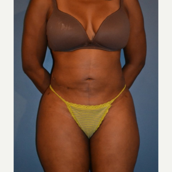 35-44 year old woman treated with Liposuction after 3414868