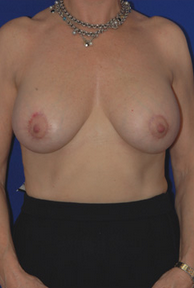 Breast Augmentation after 1016737