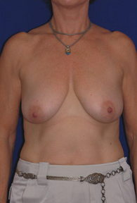 Breast Augmentation before 1016737