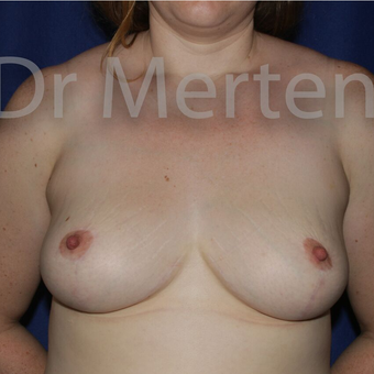 Breast Reduction after 3681326