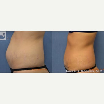 25-34 year old woman treated with Tummy Tuck 2082286