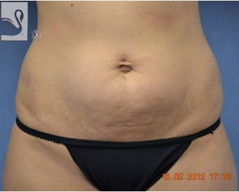 25-34 year old woman treated with Tummy Tuck before 2082286
