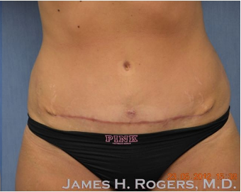 25-34 year old woman treated with Tummy Tuck after 2082286