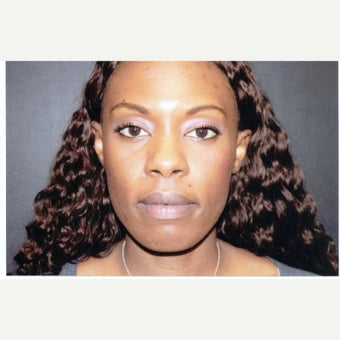 35-44 year old woman treated with African American Rhinoplasty before 1539764