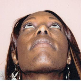 35-44 year old woman treated with African American Rhinoplasty 1539764