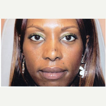 35-44 year old woman treated with African American Rhinoplasty after 1539764