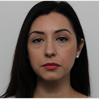 35-44 year old woman treated with Rhinoplasty before 3402045