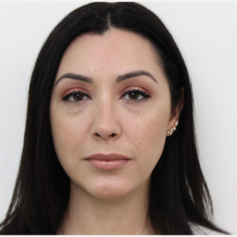 35-44 year old woman treated with Rhinoplasty after 3402045