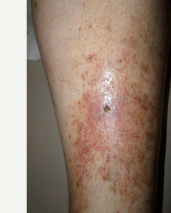75 and up year old woman treated with Vein Treatment after 3845988