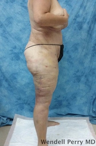 45-54 year old woman treated with Tummy Tuck after 3350929