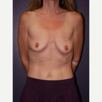 35-44 year old woman treated with Breast Lift with Implants before 1982432