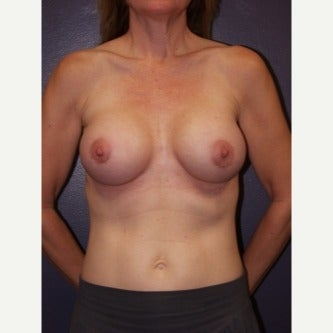 35-44 year old woman treated with Breast Lift with Implants after 1982432