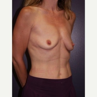35-44 year old woman treated with Breast Lift with Implants 1982432