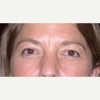 35-44 year old woman treated with upper and lower eyelid surgery before 2207906