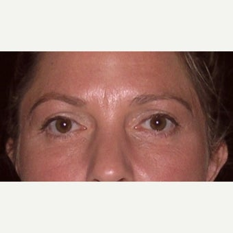 35-44 year old woman treated with upper and lower eyelid surgery after 2207906
