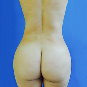 35-44 year old woman treated with Brazilian Butt Lift after 3749167