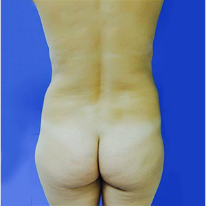 35-44 year old woman treated with Brazilian Butt Lift before 3749167