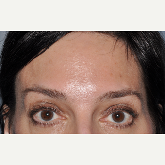Botulinum toxin injection to forehead after 3374919