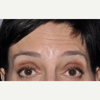 Botulinum toxin injection to forehead before 3374919