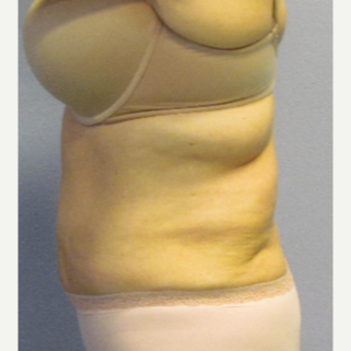 55-64 year old woman treated with CoolSculpting before 3762549