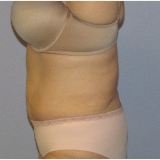 55-64 year old woman treated with CoolSculpting after 3762549