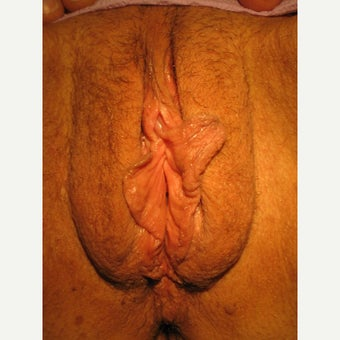 60 year old treated with LP of both minora+ majora for saggy labia majora and dissymetry of minora before 2008391