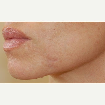 25-34 year old woman treated with Juvederm after 2647156