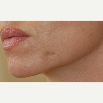 25-34 year old woman treated with Juvederm before 2647156