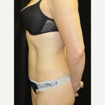35-44 year old woman treated with Tummy Tuck after 3181695