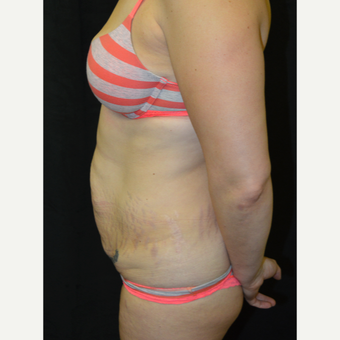 35-44 year old woman treated with Tummy Tuck before 3181695