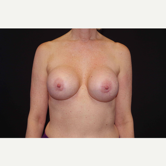 55-64 year old woman treated with Breast Implant Revision before 3280581