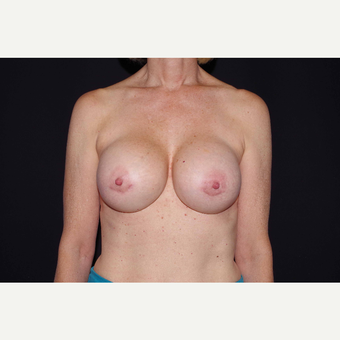 55-64 year old woman treated with Breast Implant Revision after 3280581