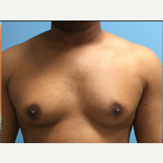 Male Breast Reduction before 3278951