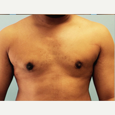 Male Breast Reduction after 3278951