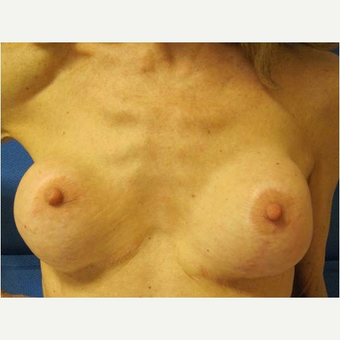 55-64 year old woman treated with Breast Implant Revision before 3744604