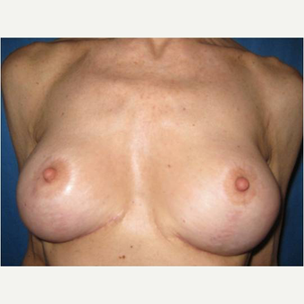 55-64 year old woman treated with Breast Implant Revision after 3744604
