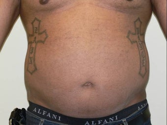 Liposuction before 234229