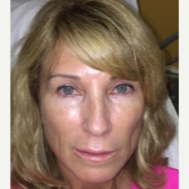 45-54 year old woman treated with Juvederm after 3658496