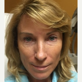 45-54 year old woman treated with Juvederm before 3658496
