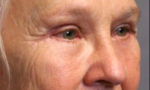 55-64 year old woman treated with Eyelid Surgery after 3046867