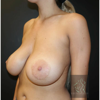 25-34 year old woman treated with Breast Implants before 3109698