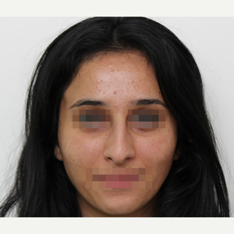 18-24 year old woman treated with Rhinoplasty before 3406545