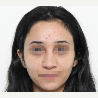 18-24 year old woman treated with Rhinoplasty after 3406545