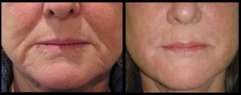 56 year old lady for lower third facial volume loss treated with 3ml Restylane dermal filler before 966275
