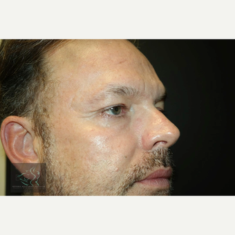 55-64 year old man treated with Wrinkle Treatment after 3591065
