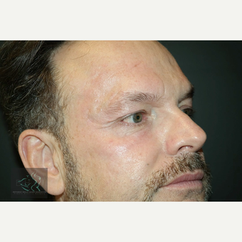 55-64 year old man treated with Wrinkle Treatment before 3591065