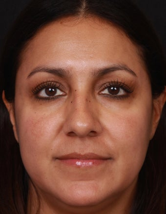 Brightening Facials and Laser for Melasma after 1358757