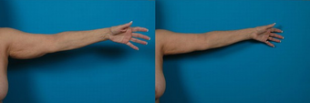 70-year-old woman treated with an Arm Lift. before 574593