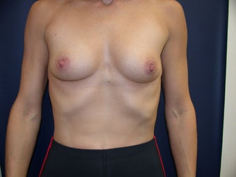 54 Year Old Female Breast Augmentation before 1455537